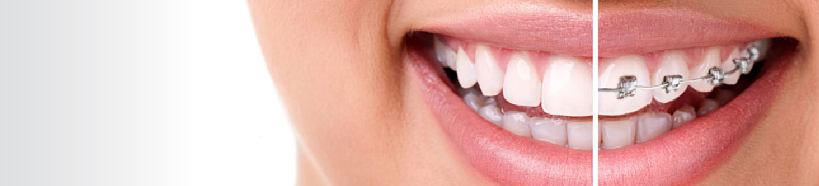 Orthodontic Dentistry Services in Boston, Ma