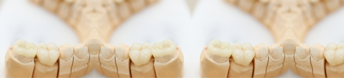 Periodontic Dentistry Services in Boston, Ma