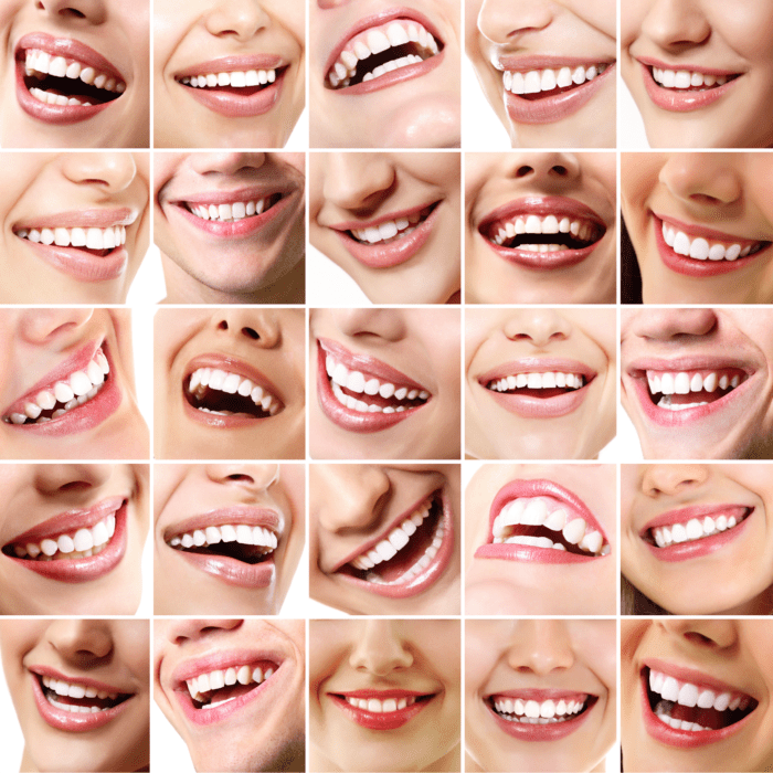 What is Orthodontics and What Do Orthodontists Do?