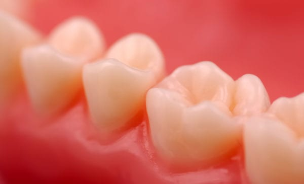 Why you Should Choose Composite Fillings