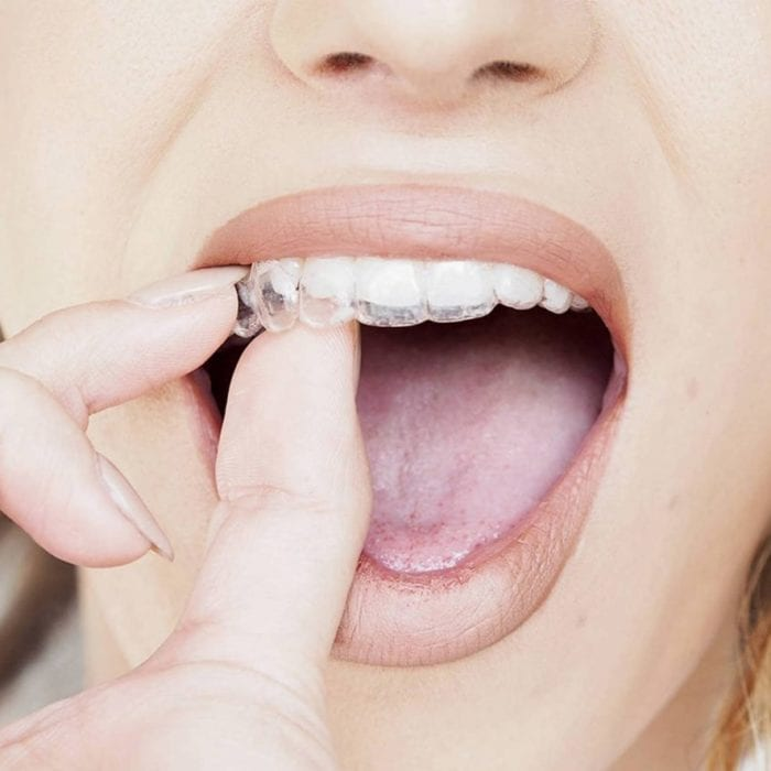 Why Your Dentist in Boston Might Recommend Invisalign for You