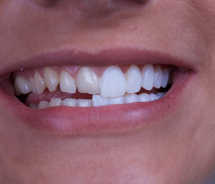 Improve your Smile with Porcelain Veneers from your Boston Cosmetic Dentist
