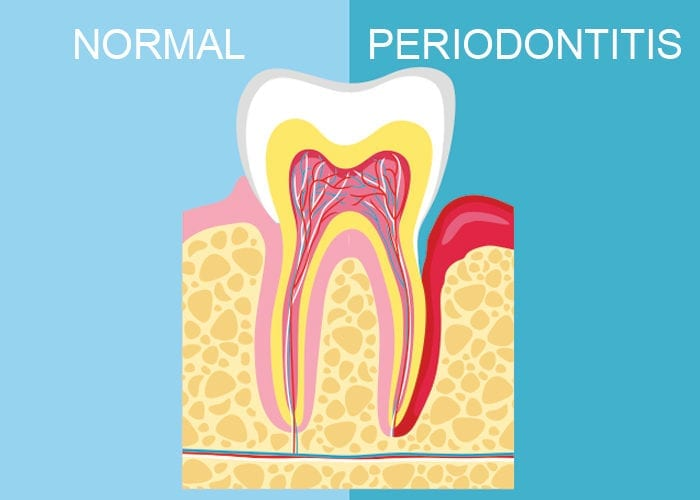 Normal vs Periodontitis