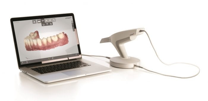 digital impressions for sleep apnea dental treatment