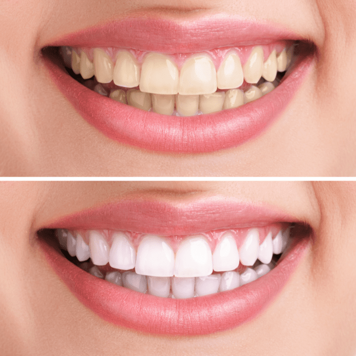 The 6 Most Popular Cosmetic Dentistry Treatments