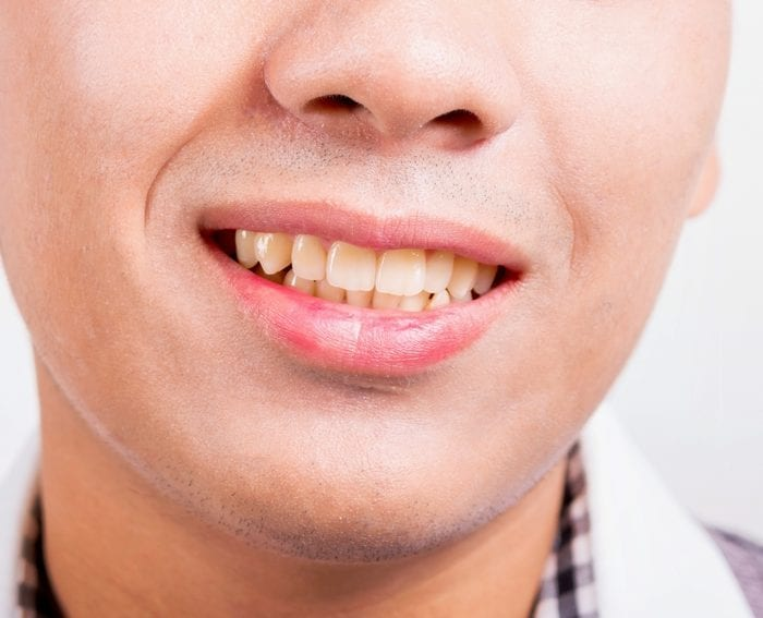 What is Causing My Tooth Discoloration?